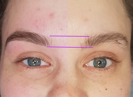 Guide for isolation brows.