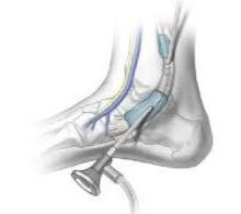 tendoscopy