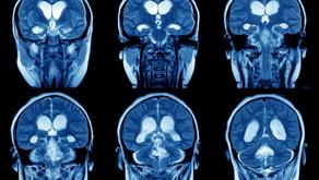 Exercise for Brain Change