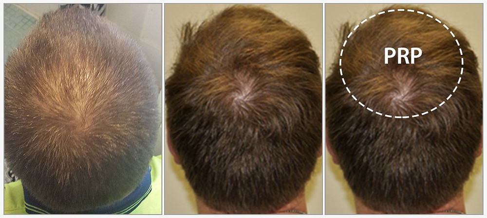 PRP for Hair Loss BU Wellness Clinic