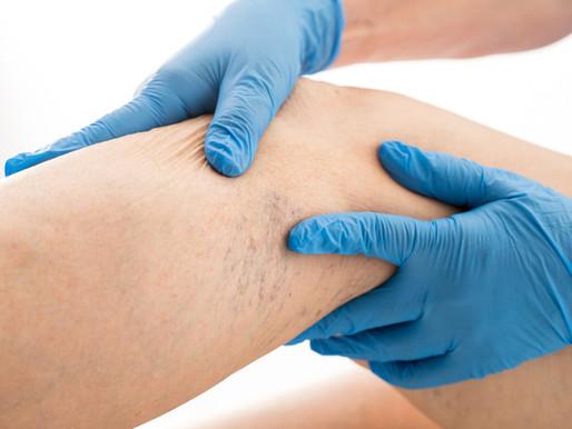 Veia safena e tratamento para as varizes