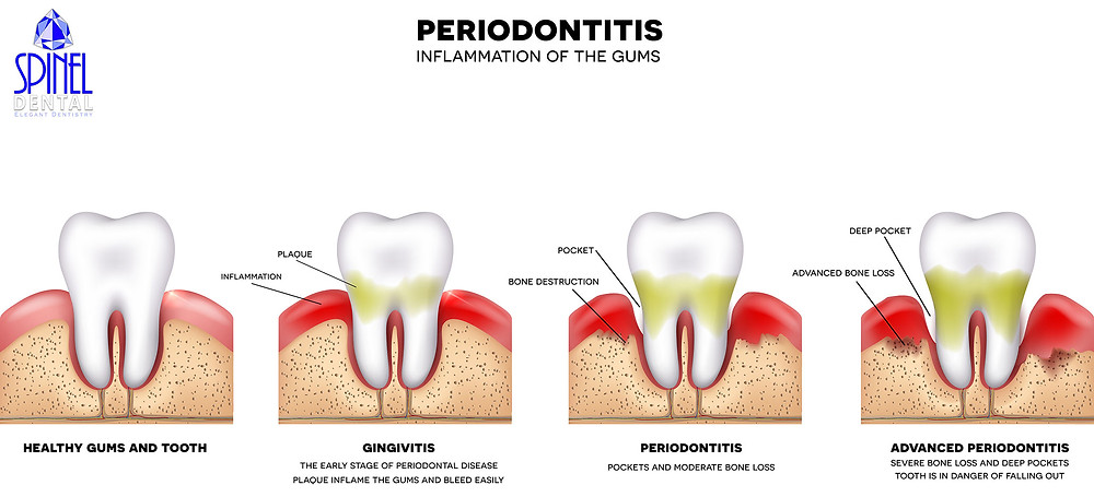 PRIODONTITIS STAGES