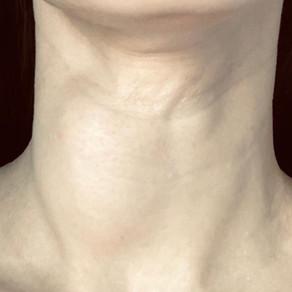 Лечение рака щитовидной железы во Владивостоке