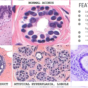Atypical Ductal Hyperplasia