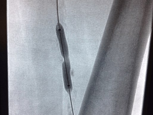 Imaging to Atherectomy: Technologies to Identify and Treat Peripheral Arterial Disease