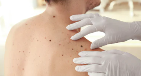 Exploring the Evolution of Melanoma