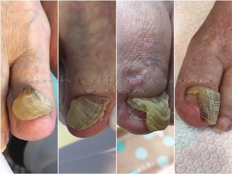 厚い爪~当サロンの爪甲鉤彎症のフットケア