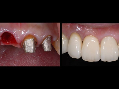 前歯のインプラントとセラミック