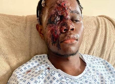 Black man seriously injured after White men screamed 'fu**ing ni**er' as they ran him over in the UK