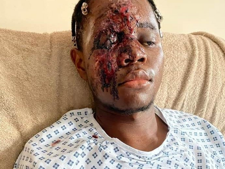 Black man seriously injured after White men screamed 'fu**ing ni**er' as they ran him over in the UK
