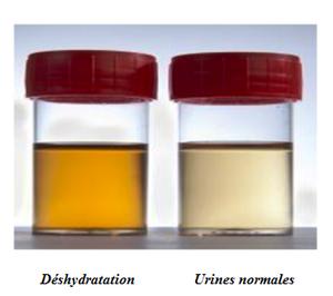 urine déshydratation