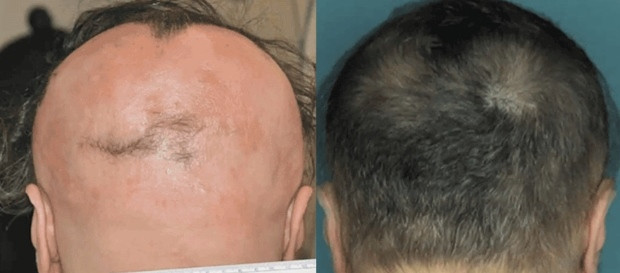 Can we cure hair loss without losing money? If Yes, how? medical cases, medical report, medical forum, facebook, google, youtube, amazon, gmail, ebay, yahoo, craigslist, weather, insurance value, gas and electricity, mortgage value, attorney value, loans value, donate conference call value, degree value, credit value