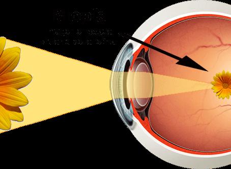 La miopía: ¿Por qué se origina y cómo tratarla?