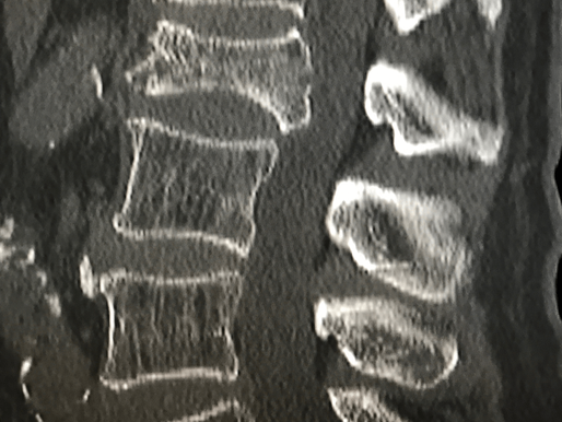 Tips and Techniques for Spinal Ablation