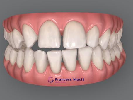 ¿Te faltan dientes?