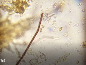 This cool video illustrates what makes a good microbe tea good