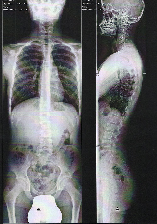 Bilan radiologique de diagnostic d'une scoliose de face et de profil chez un adolescent de 13 ans