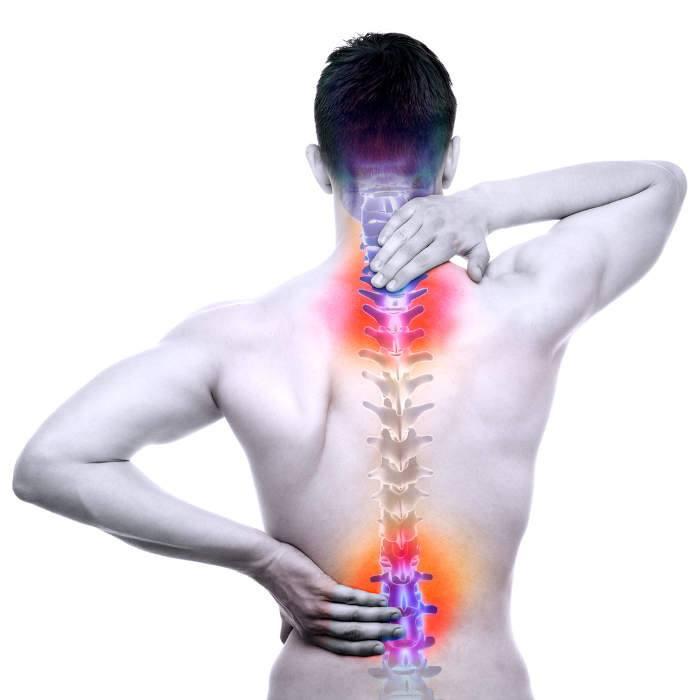 mal di schiena, colonna