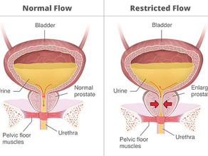 What is Urinary Retention?