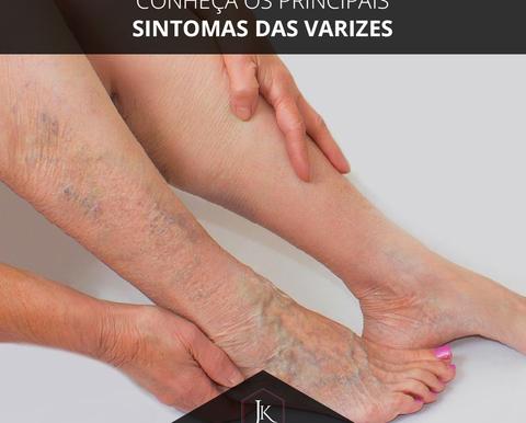 Conheça os principais sintomas das varizes