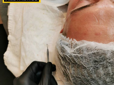 Facial Extractions... What are they?
