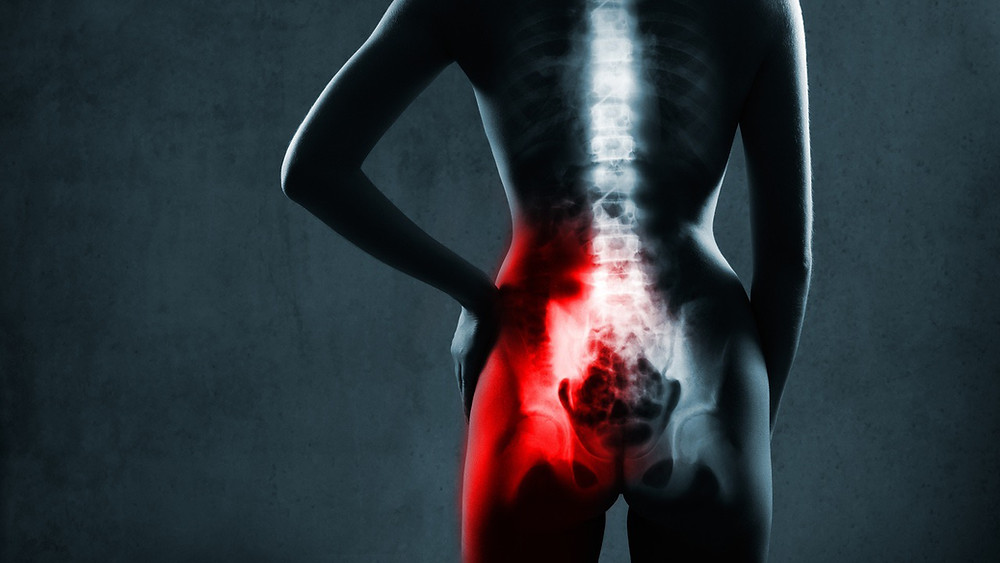 A nagging pain around your buttocks, sacroiliitis can often be mistaken for sciatica but each is quite different and needs a different approach to relieve. Remedial massage from Fulcrum Myotherapy in Aberdeenshire can treat SI by bringing balance into the muscles that move the pelvis and spine, so that your SI joint can better stay in its natural alignment.