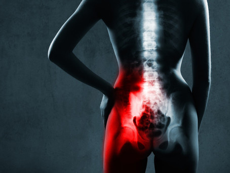 How to Relieve SI Joint Pain