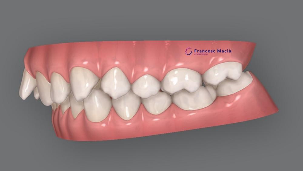 Clase II dental