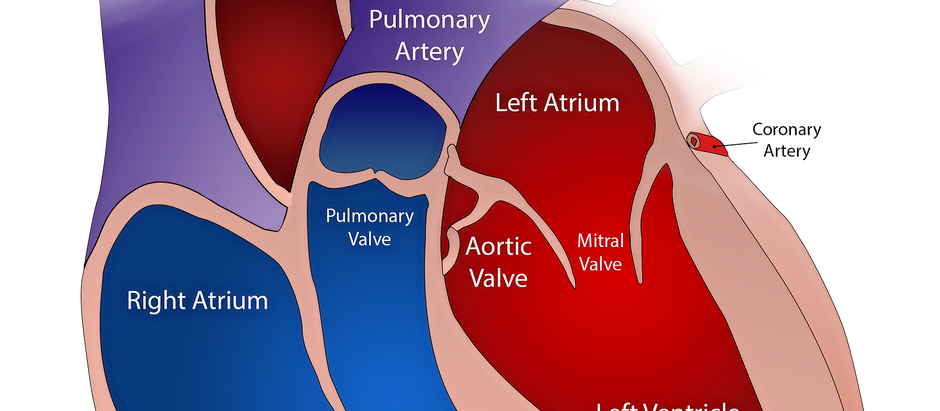 Coronary Acute syndrome (CHD) | coronary cardiovascular disease |  ischemic heart disease