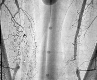bt-procedure-feed-arterial-revasculariza