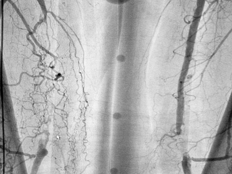 Access Points and End Points in Peripheral Arterial Disease