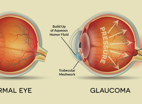 Glaucoma- The Silent Thief of Sight