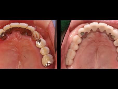 上顎のインプラント治療