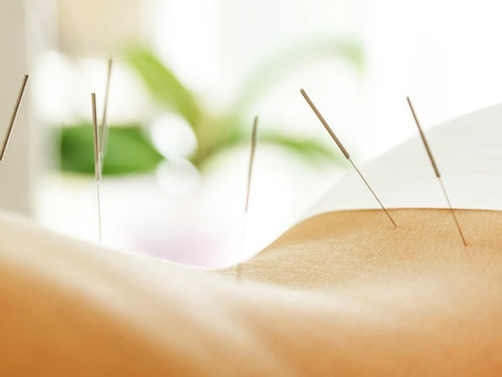 7 Ways Acupuncture Can Help You