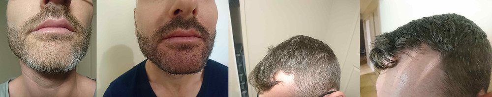Australian man before and after natural hair dye