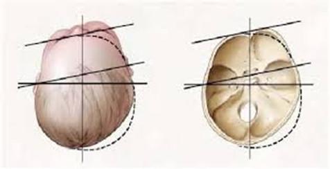 PLAGIOCEFALIA: casi dove l'osteopatia è un aiuto concreto!