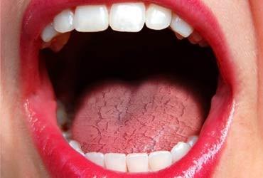 Tengo boca seca ¿Que debo hacer?