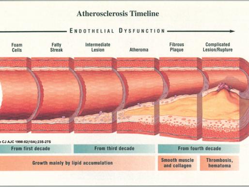 10 remedios naturales para la hipertensión arterial