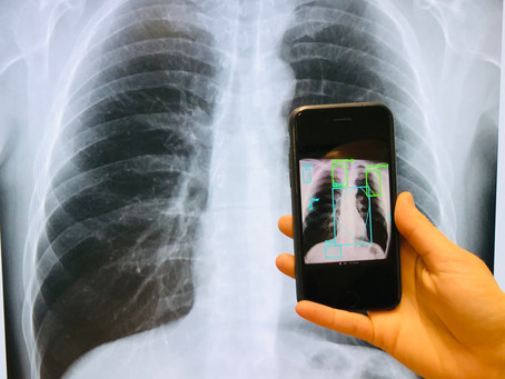 EPCON launches free Computer Aided Diagnostics for Chest X-ray @ AI for Good