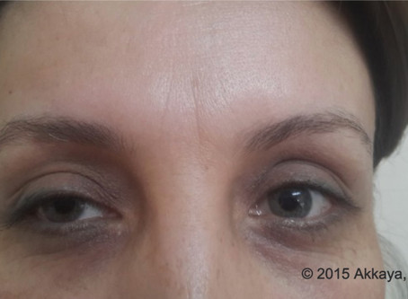 What are the side effects of Botox?