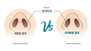 The different between opened rhinoplasty and closed rhinoplasty