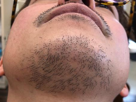 メンズヒゲ脱毛はじめました!