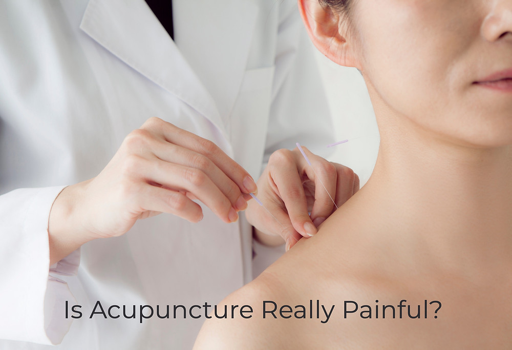 Is acupuncture really painful? Find acupuncturist near me.