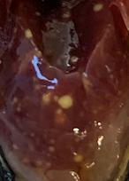 Lever met verschillende gele granulomen.