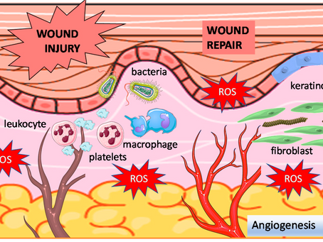 Wound Healing and Hyperbaric Oxygen Therapy Physiology: Oxidative Damage and Antioxidant Imbalance