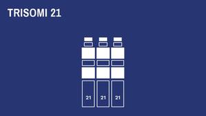Susunan kromosom pada Trisomi 21