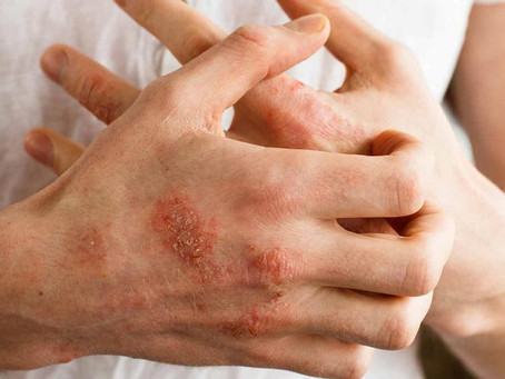 Best Psoriasis Skin Care System