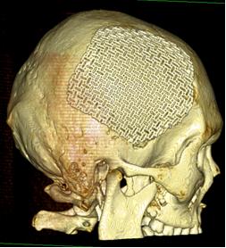 Разработка ученых повысит приживаемость имплантов костей в 6 раз