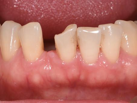 下顎前歯のすき間を、矯正ではなくセラミックで審美的に治療しました。