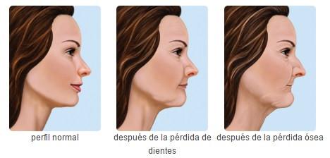 Consecuencias de la falta de dientes dentalmedics